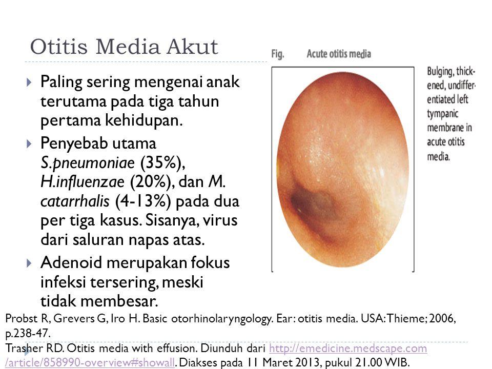 Otitis Media Akut  Paling sering mengenai anak terutama pada tiga tahun pertama kehidupan.  Penyebab utama S.pneumoniae (35%), H.influenzae (20%), d
