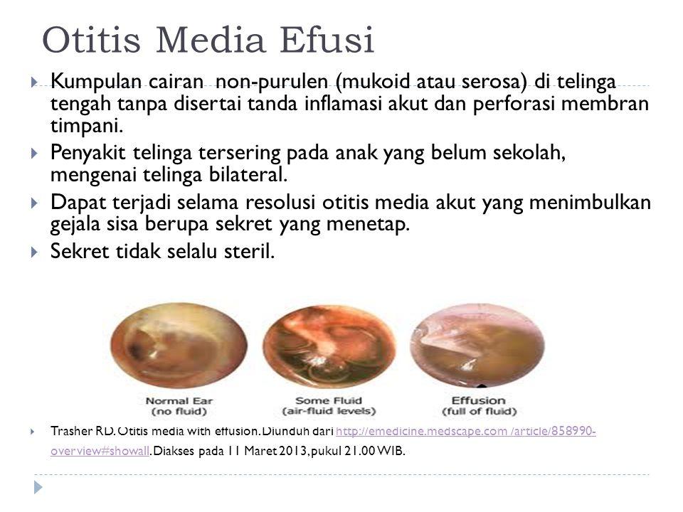 Otitis Media Efusi  Kumpulan cairan non-purulen (mukoid atau serosa) di telinga tengah tanpa disertai tanda inflamasi akut dan perforasi membran timp