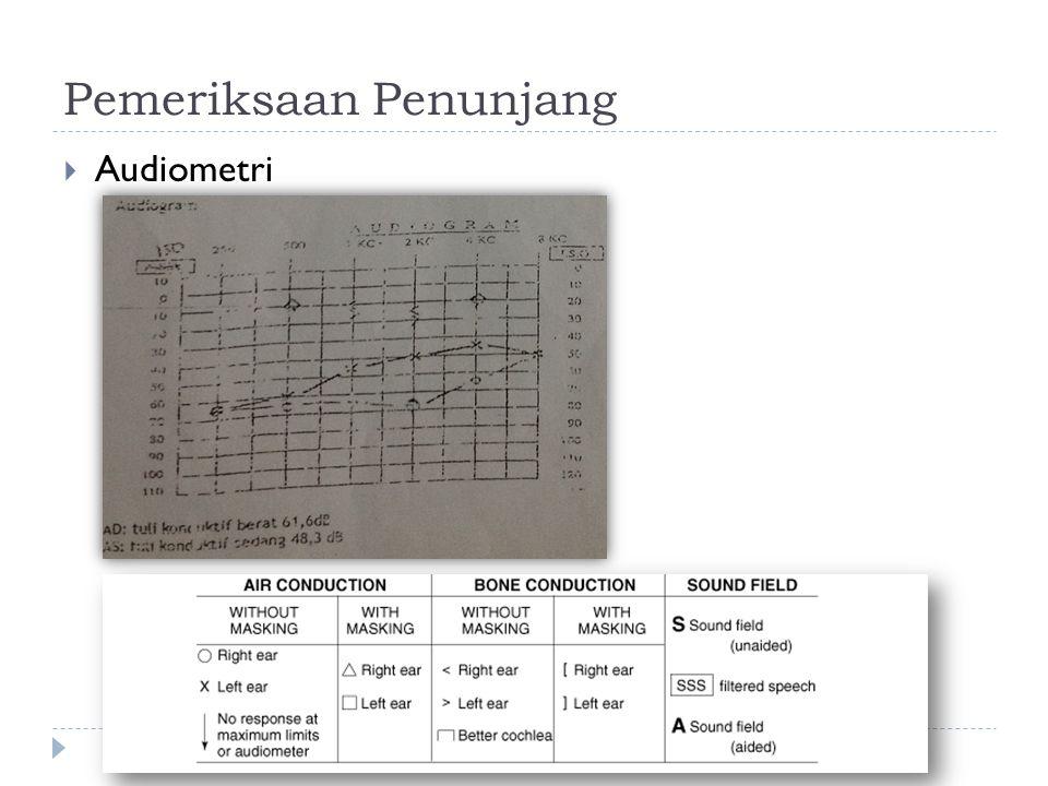 Pemeriksaan Penunjang  Audiometri