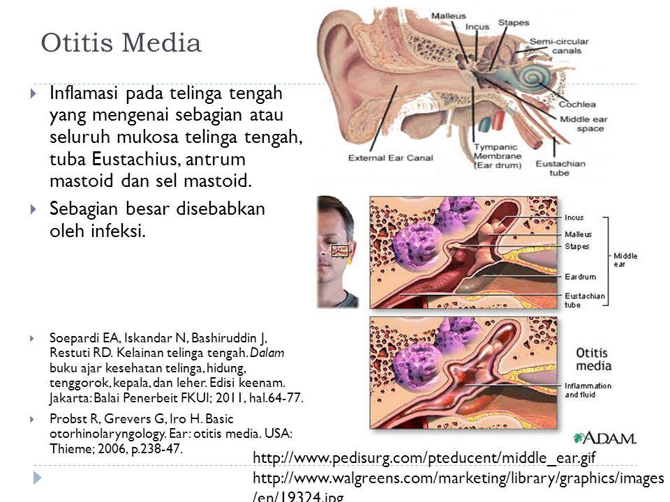 Otitis Media  Inflamasi pada telinga tengah yang mengenai sebagian atau seluruh mukosa telinga tengah, tuba Eustachius, antrum mastoid dan sel mastoi