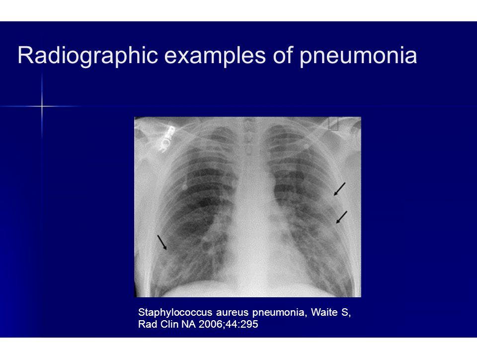 Radiographic examples of pneumonia Staphylococcus aureus pneumonia, Waite S, Rad Clin NA 2006;44:295