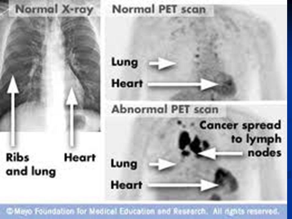 CT Scanning examples of pneumonia Mycoplasma tree in bud appearance, Waite S, Rad Clin NA 2006;44:295