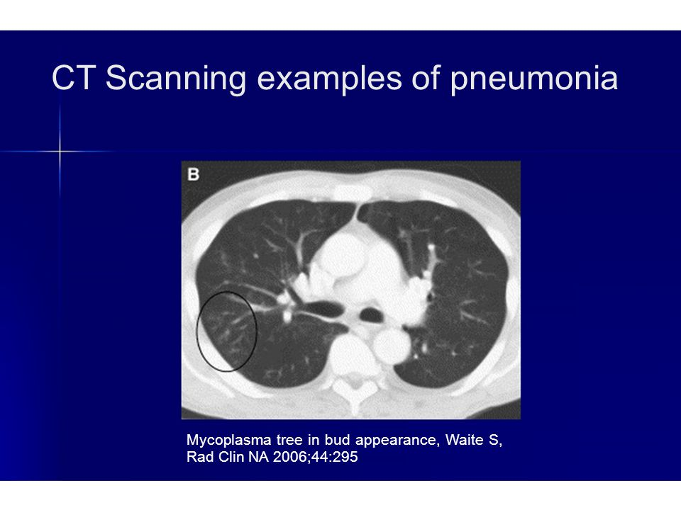 CT Scanning examples of pneumonia Mycoplasma tree in bud appearance, Waite S, Rad Clin NA 2006;44:295