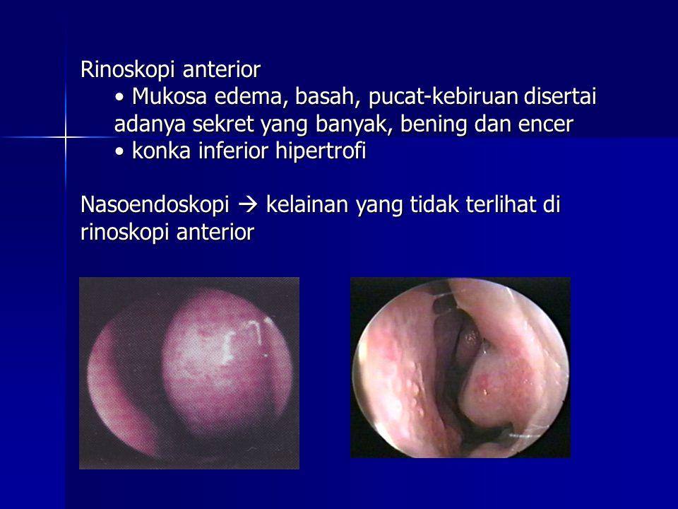Rinoskopi anterior Mukosa edema, basah, pucat-kebiruan disertai adanya sekret yang banyak, bening dan encer Mukosa edema, basah, pucat-kebiruan disertai adanya sekret yang banyak, bening dan encer konka inferior hipertrofi konka inferior hipertrofi Nasoendoskopi  kelainan yang tidak terlihat di rinoskopi anterior
