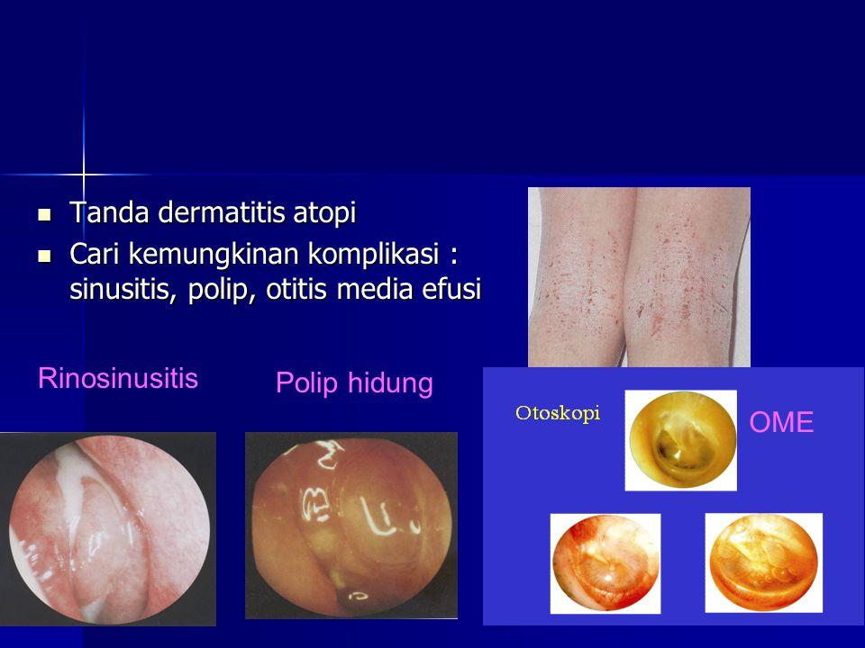 Tanda dermatitis atopi Tanda dermatitis atopi Cari kemungkinan komplikasi : sinusitis, polip, otitis media efusi Cari kemungkinan komplikasi : sinusitis, polip, otitis media efusi Rinosinusitis Polip hidung OME