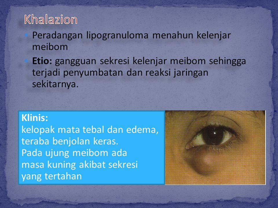 Klinis: kelopak mata tebal dan edema, teraba benjolan keras. Pada ujung meibom ada masa kuning akibat sekresi yang tertahan
