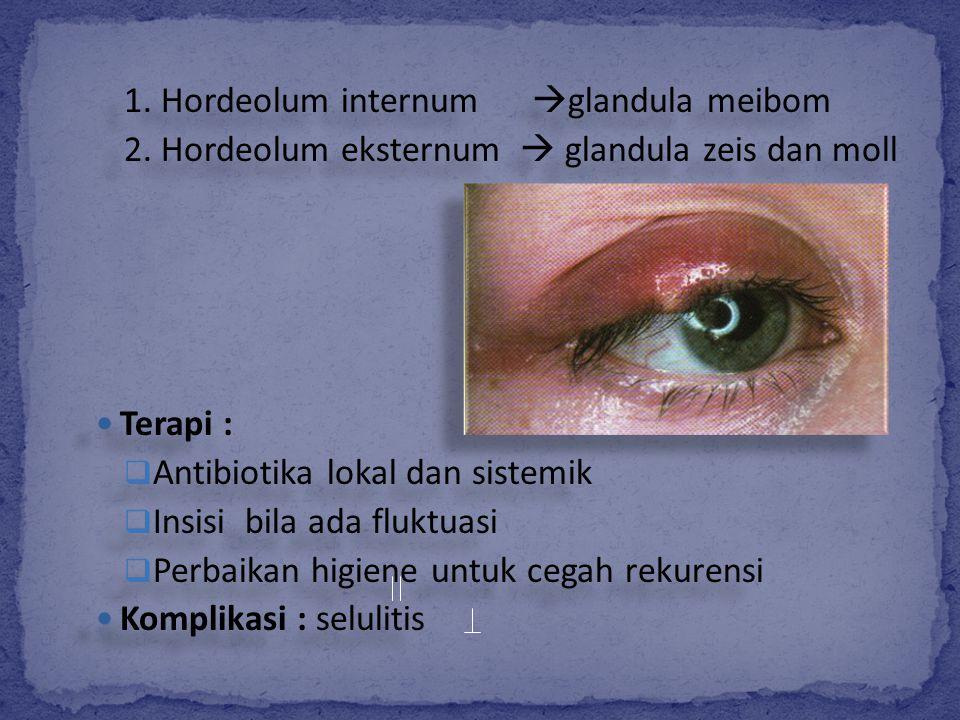 1. Hordeolum internum  glandula meibom 2. Hordeolum eksternum  glandula zeis dan moll Terapi :  Antibiotika lokal dan sistemik  Insisi bila ada fl