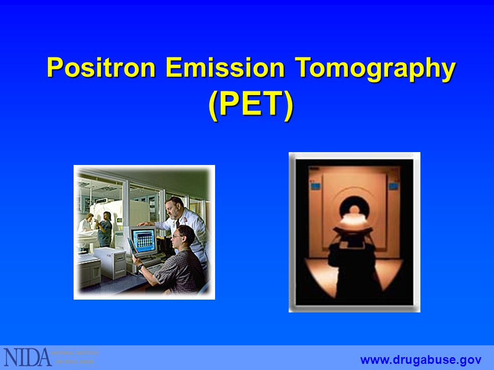 Positron Emission Tomography (PET) www.drugabuse.gov