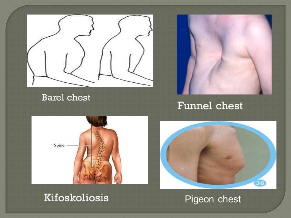 Barel chest Kifoskoliosis Funnel chest Pigeon chest