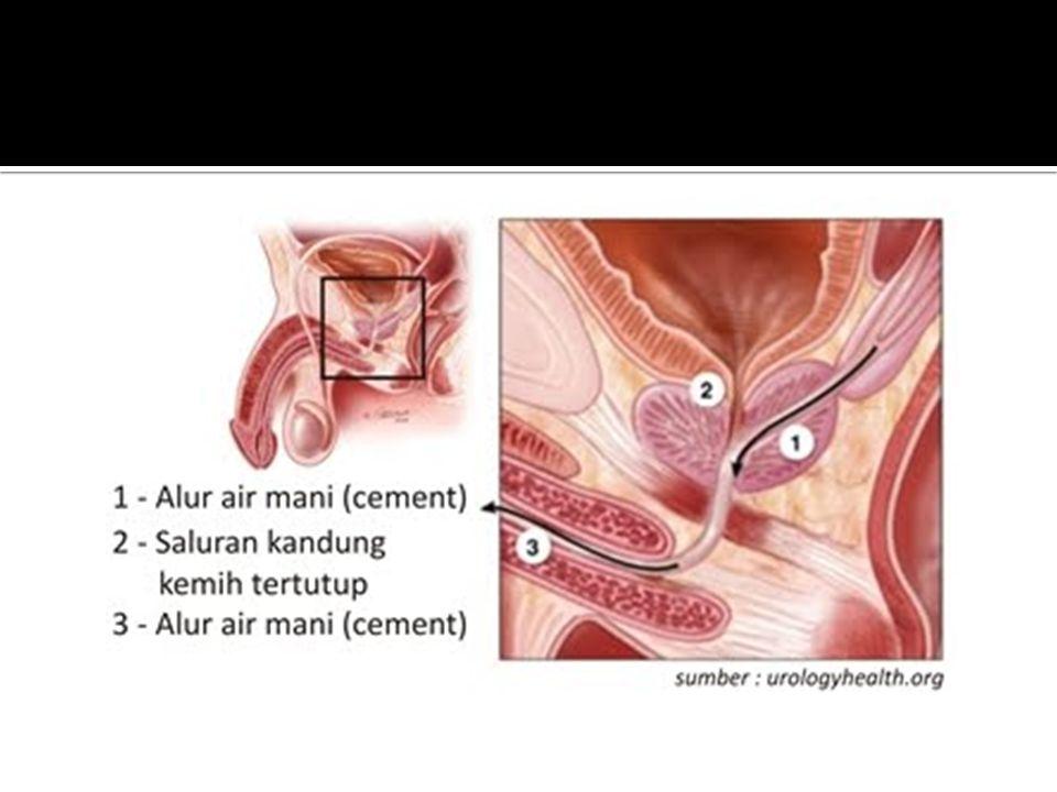  Saluran ejakulasi  Penghubung kantong sperma dengan uretra  Saluran pendek  Mampu menyemprotkan sperma ke uretra, lalu mengalirkannya keluar  Ur