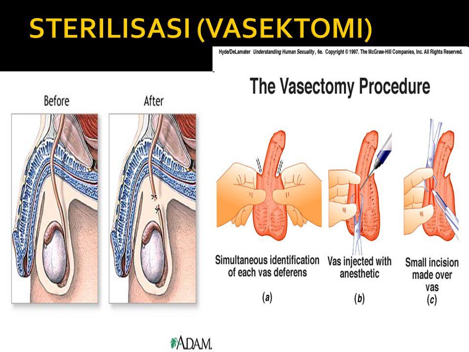  JERAWAT Tubuh wanita memproduksi hormon wanita (estrogen, progesteron) dan sedikit hormon pria (androgen). Pada usia reproduktif (15 - 45 tahun) ser