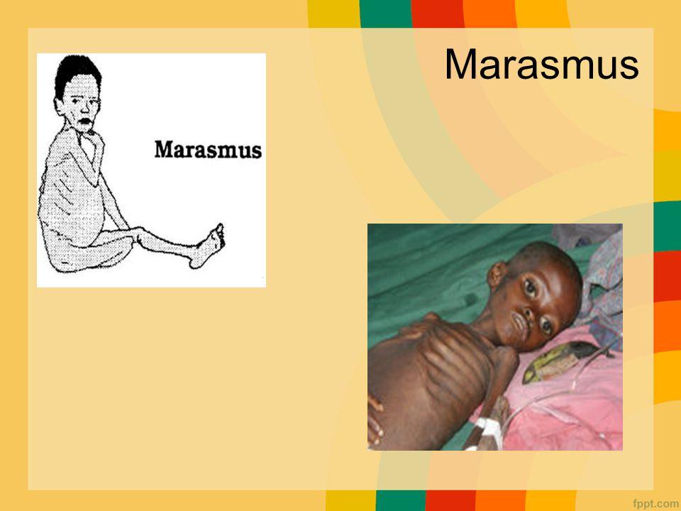 Marasmus