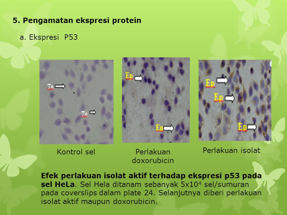 5. Pengamatan ekspresi protein a. Ekspresi P53 Kontrol selPerlakuan doxorubicin Perlakuan isolat Efek perlakuan isolat aktif terhadap ekspresi p53 pad