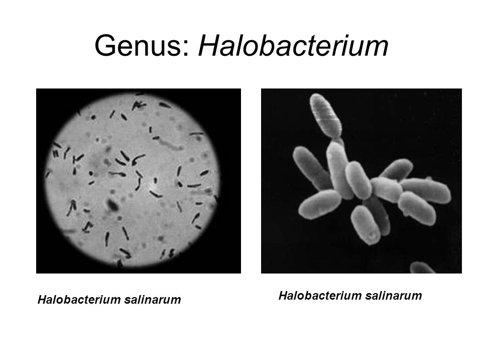Genus: Halobacterium Halobacterium salinarum