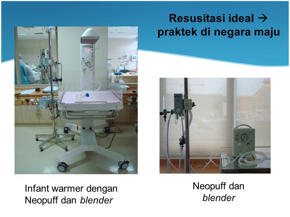 Neopuff dan blender Infant warmer dengan Neopuff dan blender Resusitasi ideal  praktek di negara maju