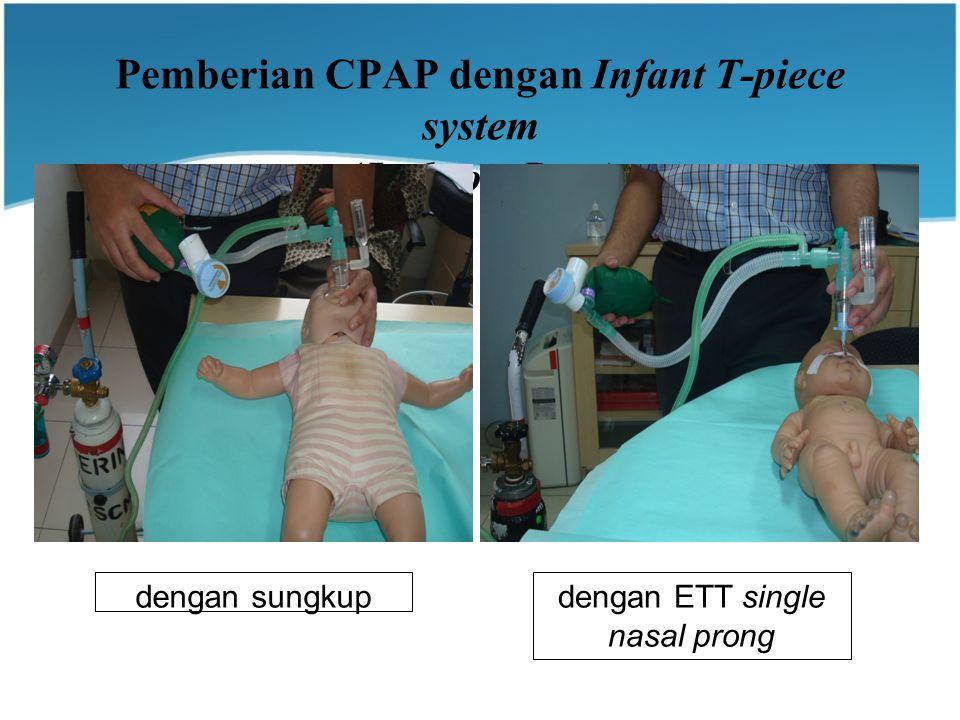 Pemberian CPAP dengan Infant T-piece system (Jackson-Rees) dengan sungkupdengan ETT single nasal prong