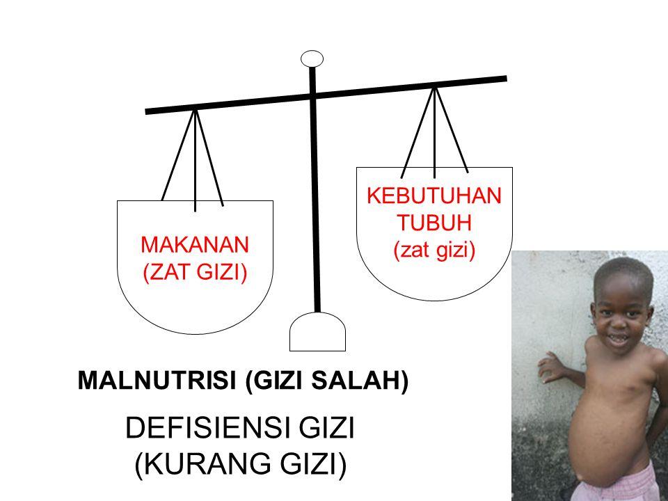 MAKANAN (ZAT GIZI) KEBUTUHAN TUBUH (zat gizi) MALNUTRISI (GIZI SALAH) DEFISIENSI GIZI (KURANG GIZI)