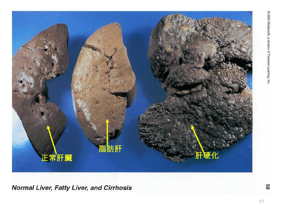 脂肪肝 正常肝臟 肝硬化 17