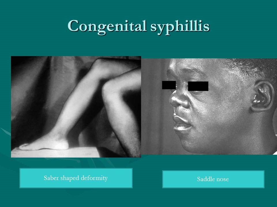 Congenital syphillis Saber shaped deformity Saddle nose