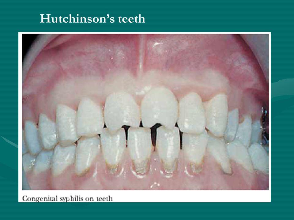 Hutchinson's teeth