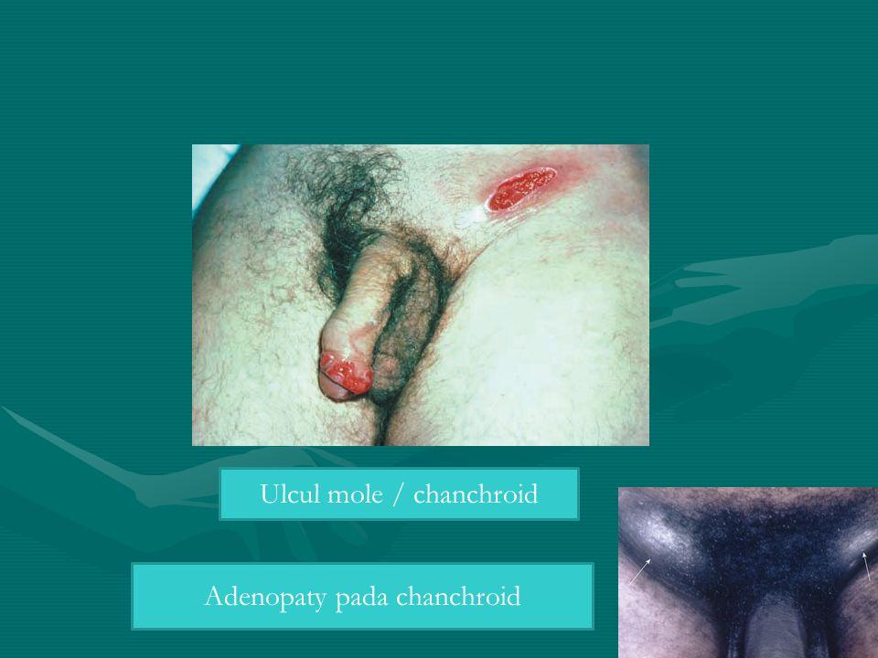 Adenopaty pada chanchroid Ulcul mole / chanchroid