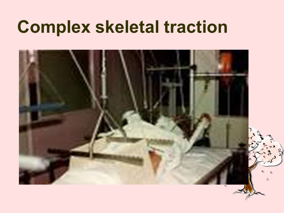 Complex skeletal traction