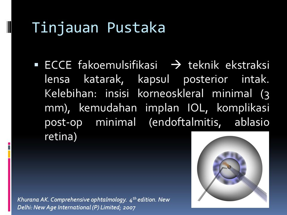 Tinjauan Pustaka  ECCE fakoemulsifikasi  teknik ekstraksi lensa katarak, kapsul posterior intak. Kelebihan: insisi korneoskleral minimal (3 mm), kem