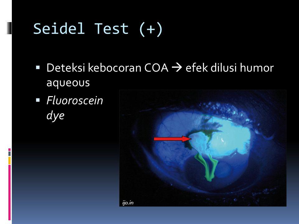 Seidel Test (+)  Deteksi kebocoran COA  efek dilusi humor aqueous  Fluoroscein dye ijo.in
