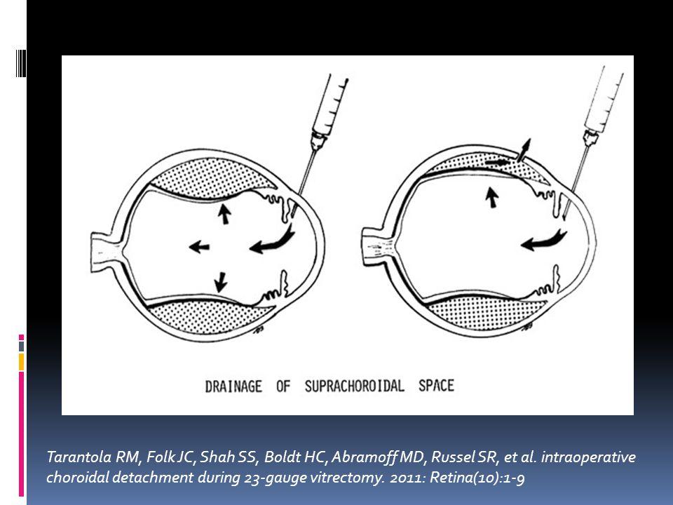 Tarantola RM, Folk JC, Shah SS, Boldt HC, Abramoff MD, Russel SR, et al. intraoperative choroidal detachment during 23-gauge vitrectomy. 2011: Retina(