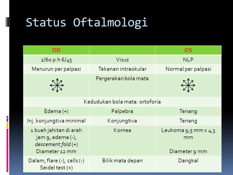 Status Oftalmologi ODOS 2/60 p.h 6/45VisusNLP Menurun per palpasiTekanan intraokularNormal per palpasi Pergerakan bola mata Kedudukan bola mata: ortof