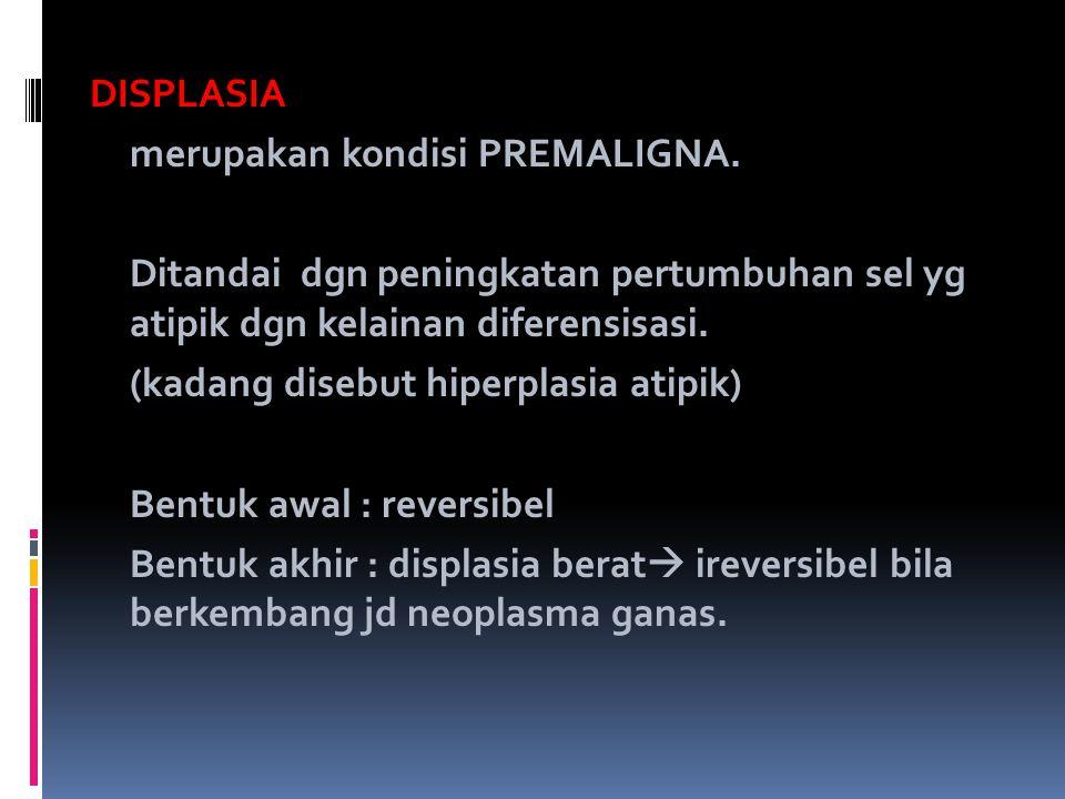 DISPLASIA merupakan kondisi PREMALIGNA. Ditandai dgn peningkatan pertumbuhan sel yg atipik dgn kelainan diferensisasi. (kadang disebut hiperplasia ati