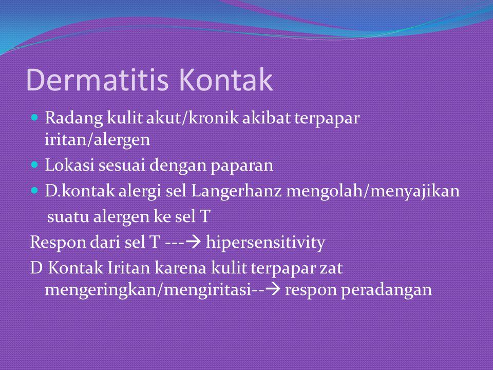 Dermatitis Kontak Radang kulit akut/kronik akibat terpapar iritan/alergen Lokasi sesuai dengan paparan D.kontak alergi sel Langerhanz mengolah/menyaji