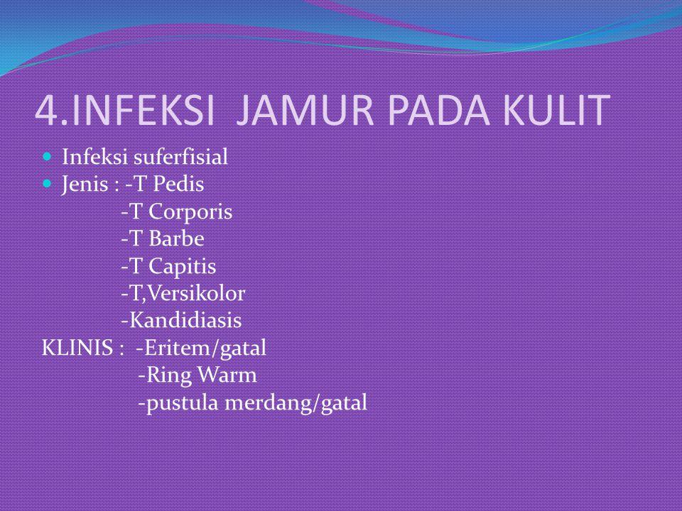 4.INFEKSI JAMUR PADA KULIT Infeksi suferfisial Jenis : -T Pedis -T Corporis -T Barbe -T Capitis -T,Versikolor -Kandidiasis KLINIS : -Eritem/gatal -Rin