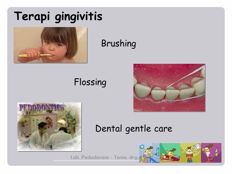 Terapi gingivitis Brushing Flossing Dental gentle care