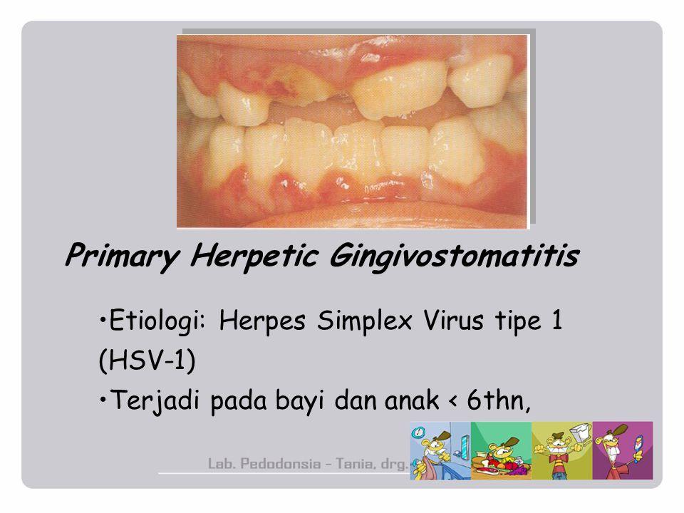 Primary Herpetic Gingivostomatitis Etiologi: Herpes Simplex Virus tipe 1 (HSV-1) Terjadi pada bayi dan anak < 6thn,