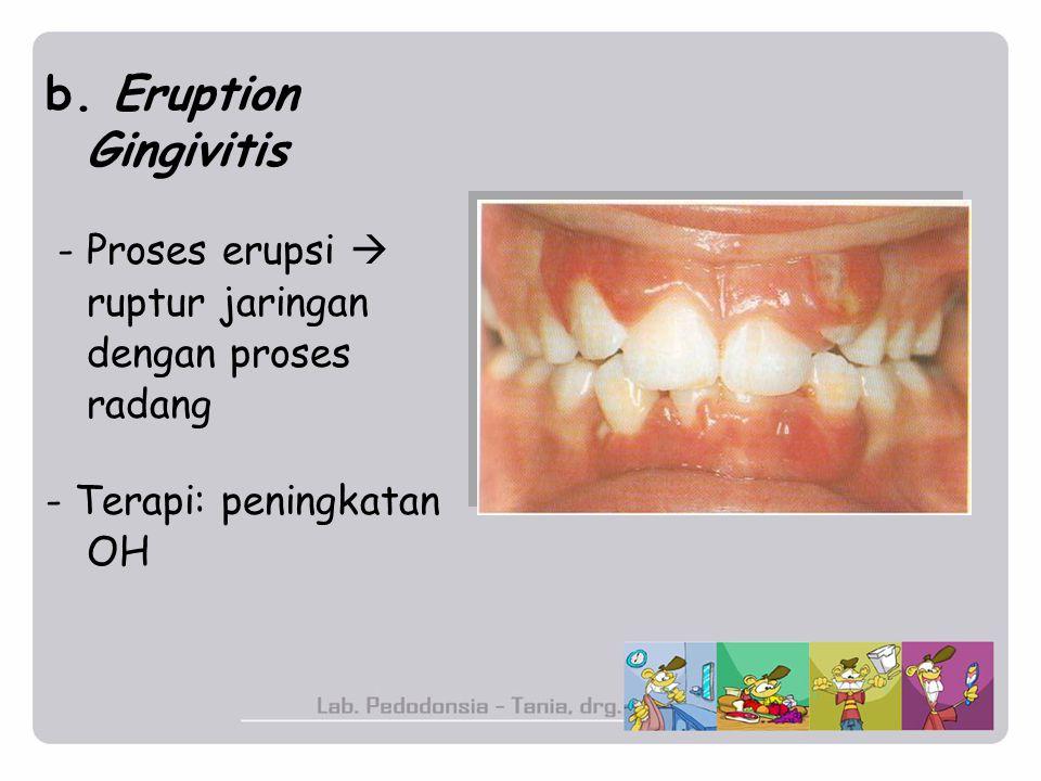 b. Eruption Gingivitis - Proses erupsi  ruptur jaringan dengan proses radang - Terapi: peningkatan OH