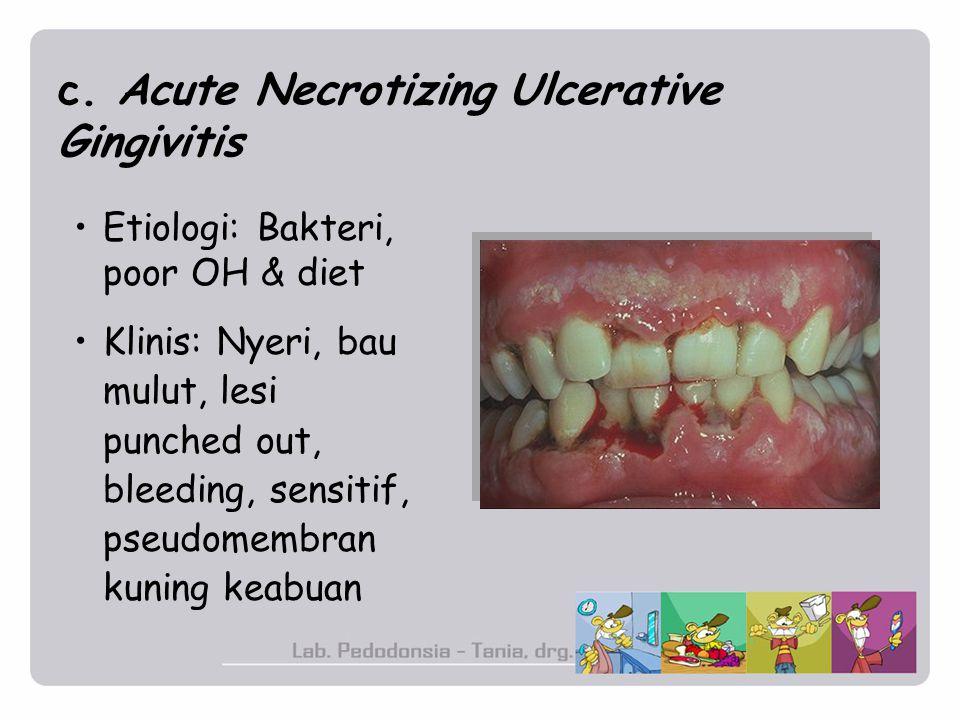 c. Acute Necrotizing Ulcerative Gingivitis Etiologi: Bakteri, poor OH & diet Klinis: Nyeri, bau mulut, lesi punched out, bleeding, sensitif, pseudomem