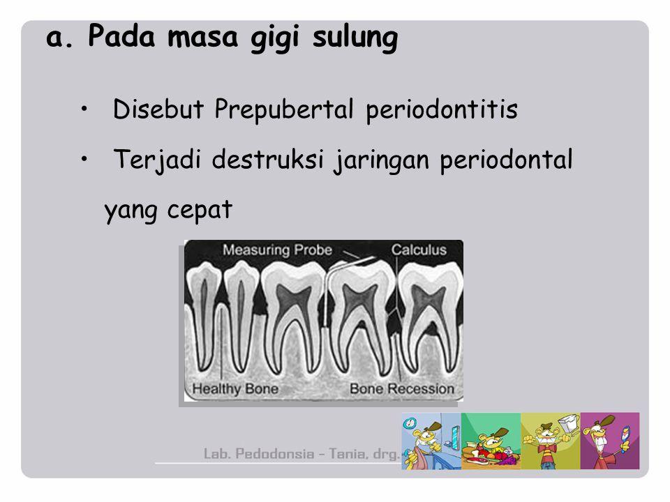 a. Pada masa gigi sulung Disebut Prepubertal periodontitis Terjadi destruksi jaringan periodontal yang cepat