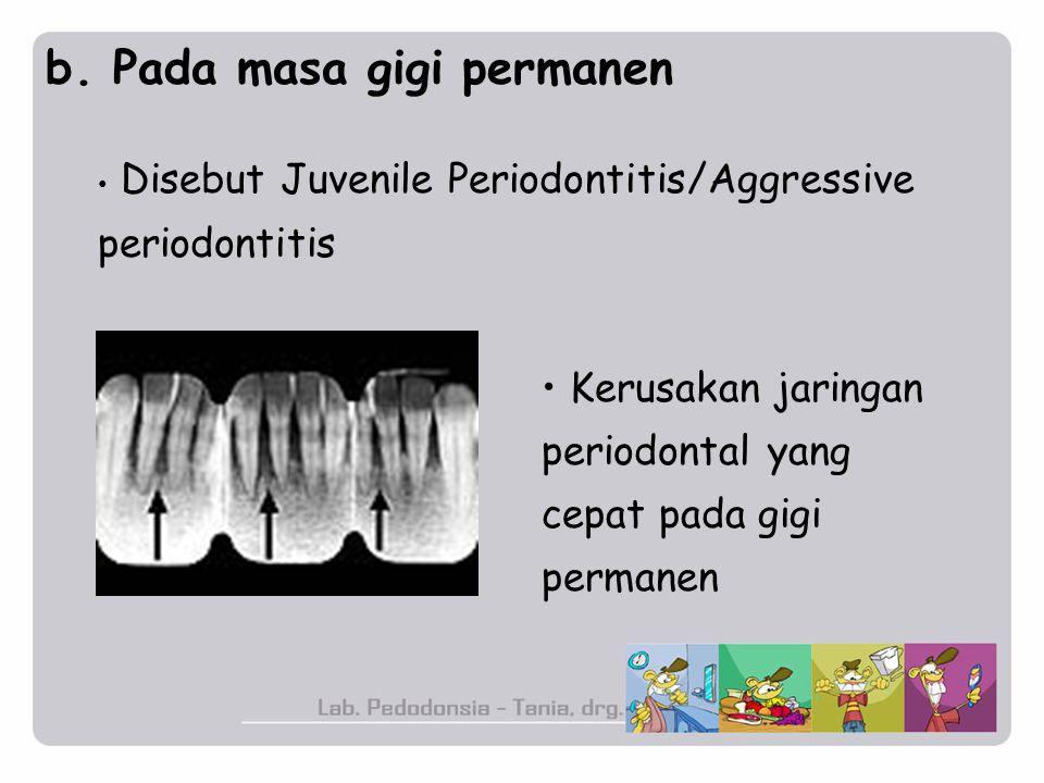 b. Pada masa gigi permanen Disebut Juvenile Periodontitis/Aggressive periodontitis Kerusakan jaringan periodontal yang cepat pada gigi permanen
