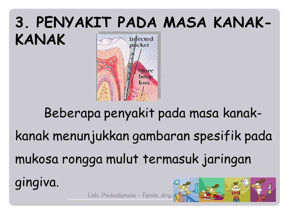 3. PENYAKIT PADA MASA KANAK- KANAK Beberapa penyakit pada masa kanak- kanak menunjukkan gambaran spesifik pada mukosa rongga mulut termasuk jaringan g