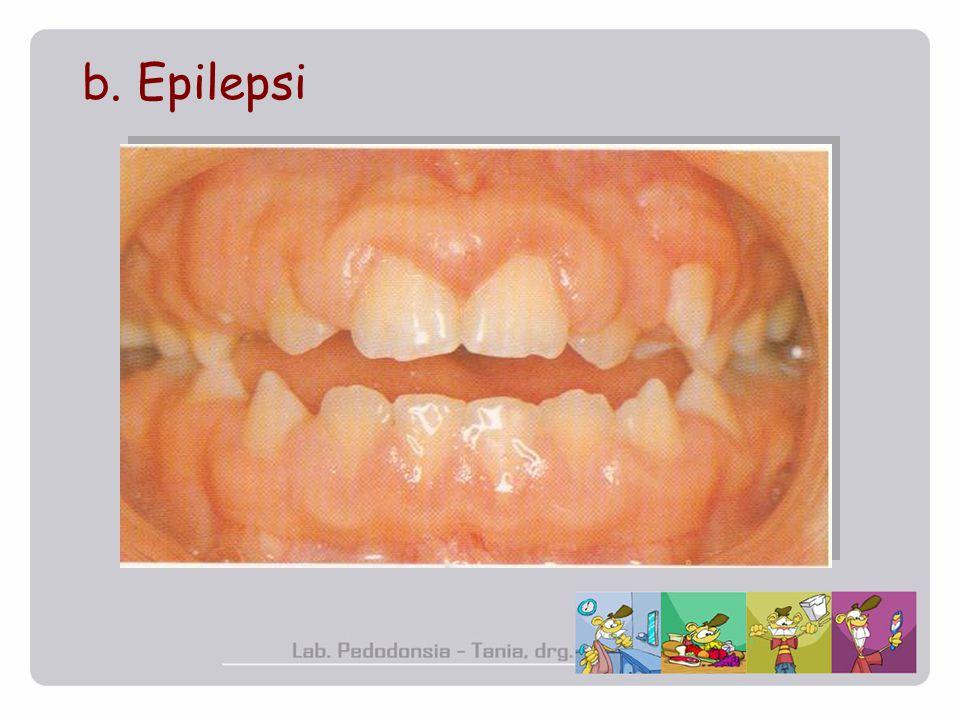 b. Epilepsi