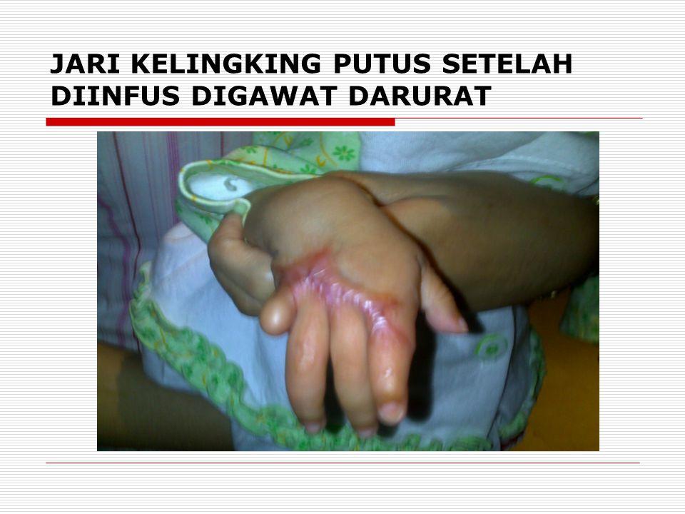 JARI KELINGKING PUTUS SETELAH DIINFUS DIGAWAT DARURAT