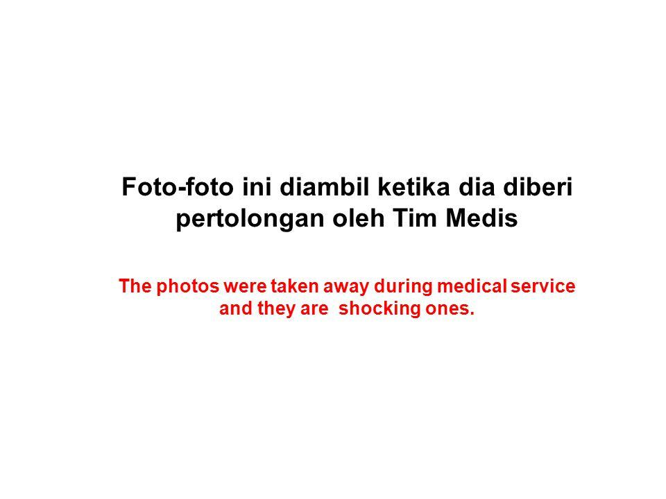 Foto-foto ini diambil ketika dia diberi pertolongan oleh Tim Medis The photos were taken away during medical service and they are shocking ones.