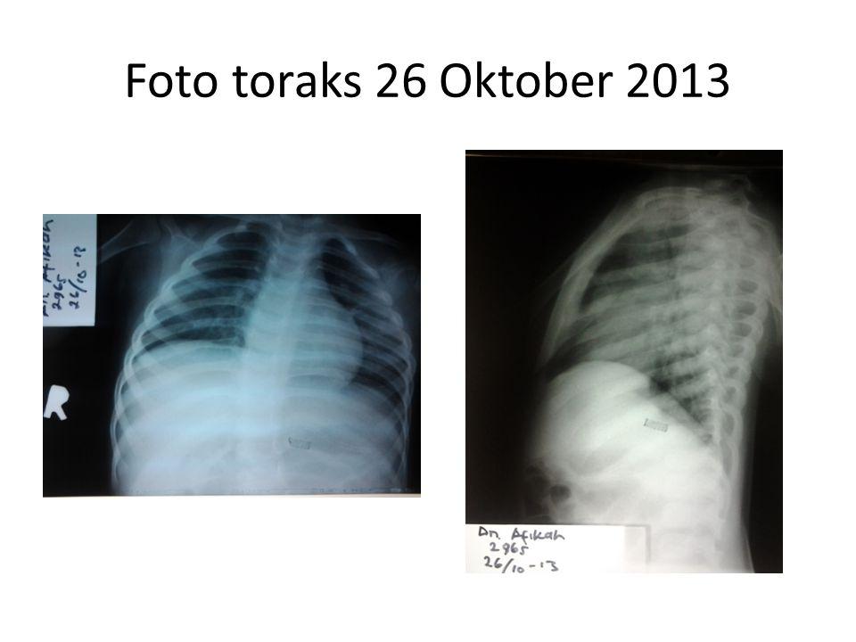 Foto toraks 26 Oktober 2013