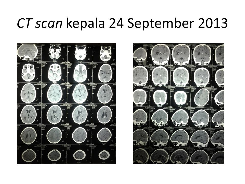 CT scan kepala 24 September 2013
