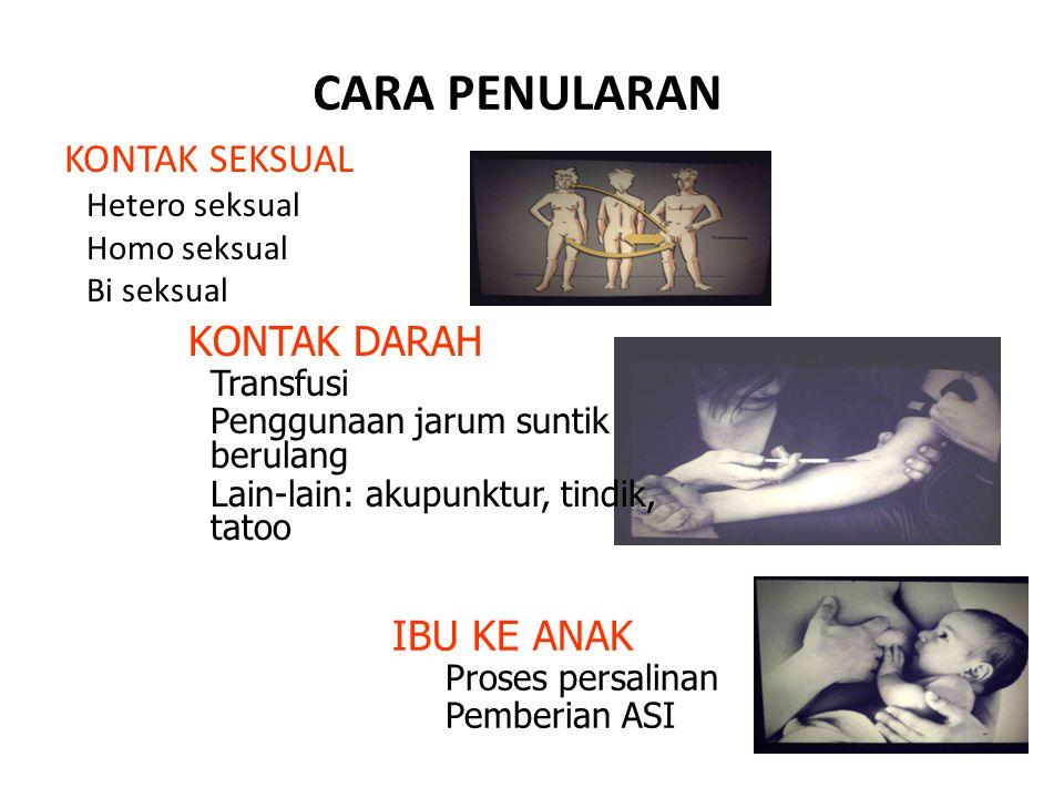CARA PENULARAN KONTAK SEKSUAL Hetero seksual Homo seksual Bi seksual KONTAK DARAH Transfusi Penggunaan jarum suntik berulang Lain-lain: akupunktur, ti