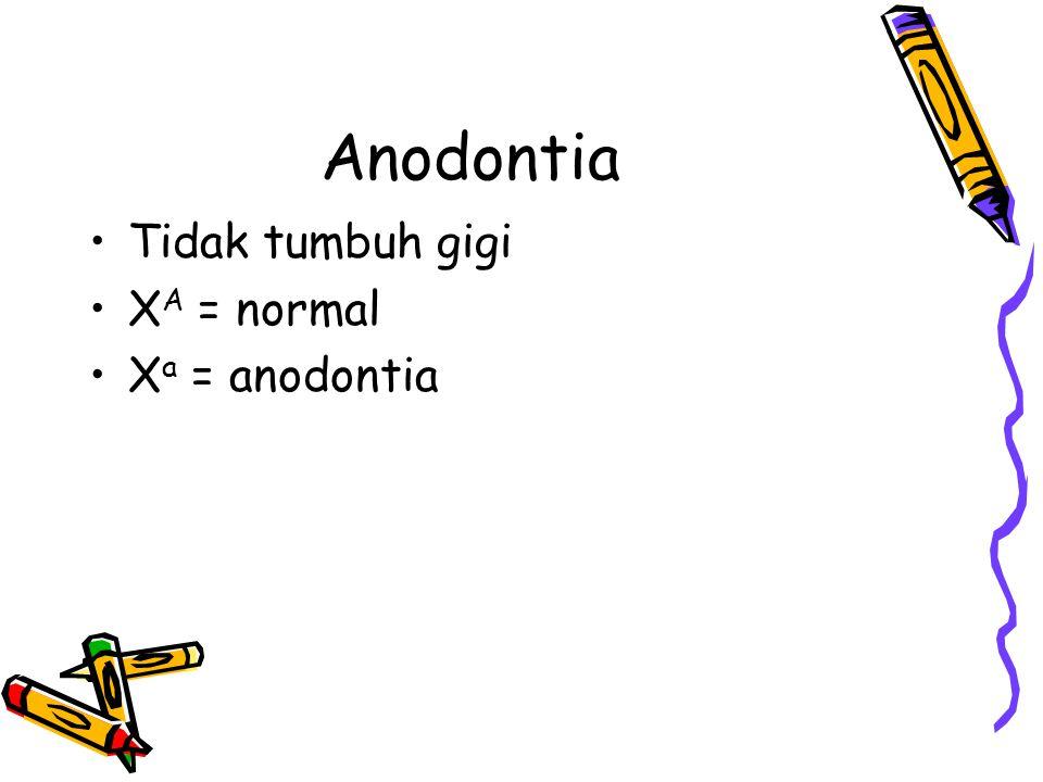 hemofilia Darah sukar membeku saat luka X H = normal X h = hemofilia Termasuk gen letal