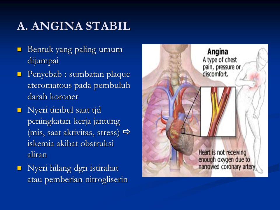 A. ANGINA STABIL Bentuk yang paling umum dijumpai Bentuk yang paling umum dijumpai Penyebab : sumbatan plaque ateromatous pada pembuluh darah koroner