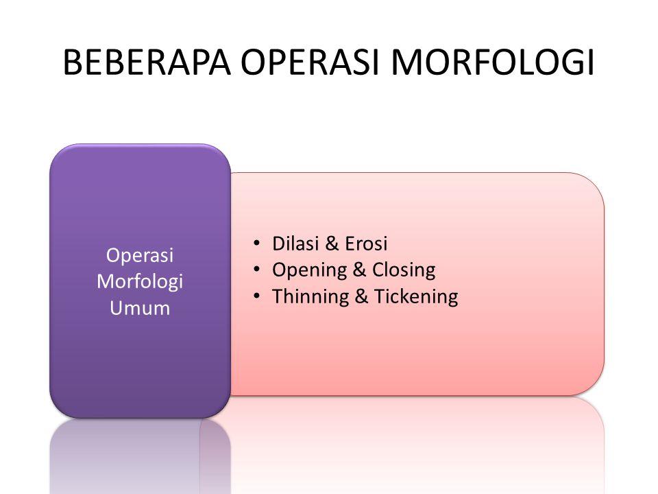 BEBERAPA OPERASI MORFOLOGI Dilasi & Erosi Opening & Closing Thinning & Tickening