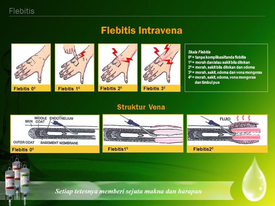 Setiap tetesnya memberi sejuta makna dan harapan Pencegahan Pertahankan kebersihan lingkungan dan alat Cuci tangan sebelum dan setelah tindakan Pahami teknik dengan benar/baik Infus set & jarum diganti tiap < 72 jam Tempat penusukan didesinfektan (ganti balutan) setiap hari Flebitis